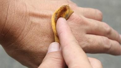 Photo of قشر الموز لعلاج الصدفية