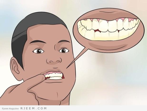 5 فوائد لخيط الاسنان