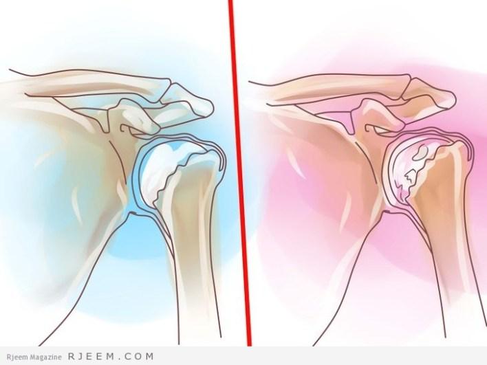 التهاب المفاصل اسباب وعلاج