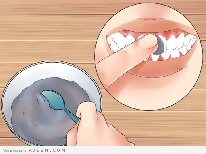 11 طريقة لتبييض الاسنان في المنزل