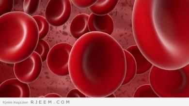 Photo of تجلط الدم