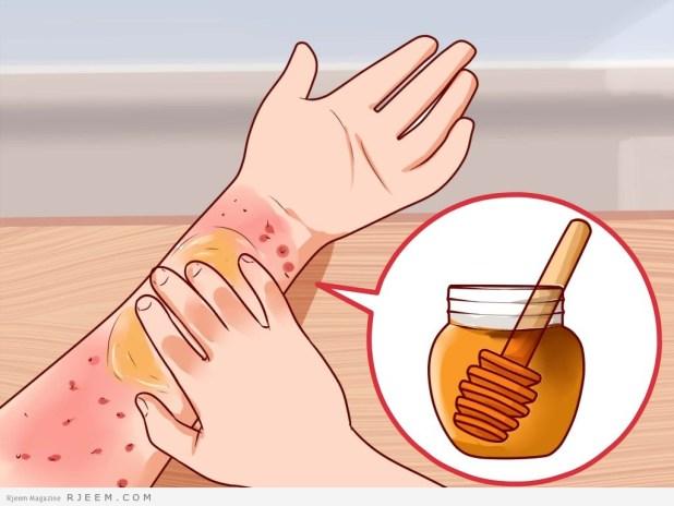 5 فوائد طبية للعسل