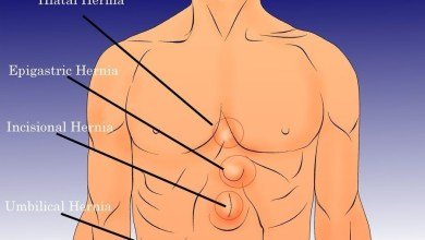 Photo of علاج مرض الفتق