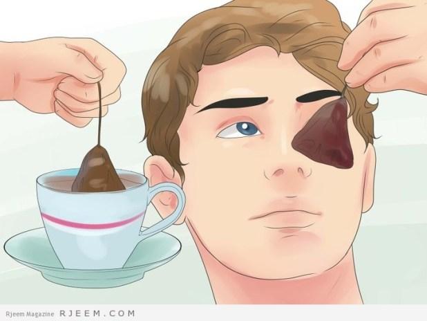 12 طريقة لتفتيح الهالات السوداء باستخدام البطاطس