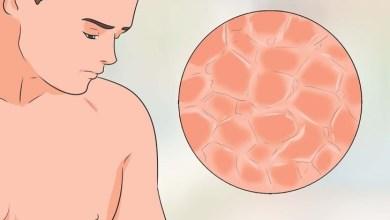 Photo of 12 طريقة طبيعية لعلاج الصدفية