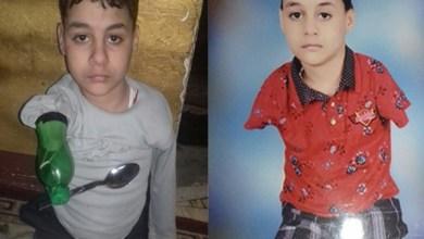 Photo of فيديو وصور: طفل مصري يستخدم قارورة بلاستيكية كطرف صناعي