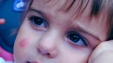 Photo of كيفية علاج اللدغة عند الأطفال