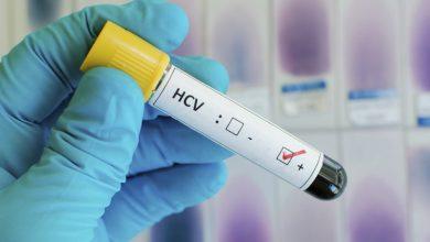 Photo of تحليل فيروس سي و أنواعه و تحاليل الكبد الواجب إجرائها لسلامة الكبد