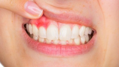 Photo of ما هي أعراض الإصابة بالأمراض اللثوية وأمراض النسج الداعمة للأسنان؟
