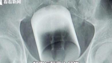 Photo of أطباء يكتشفون كأساً زجاجياً داخل أمعاء رجل