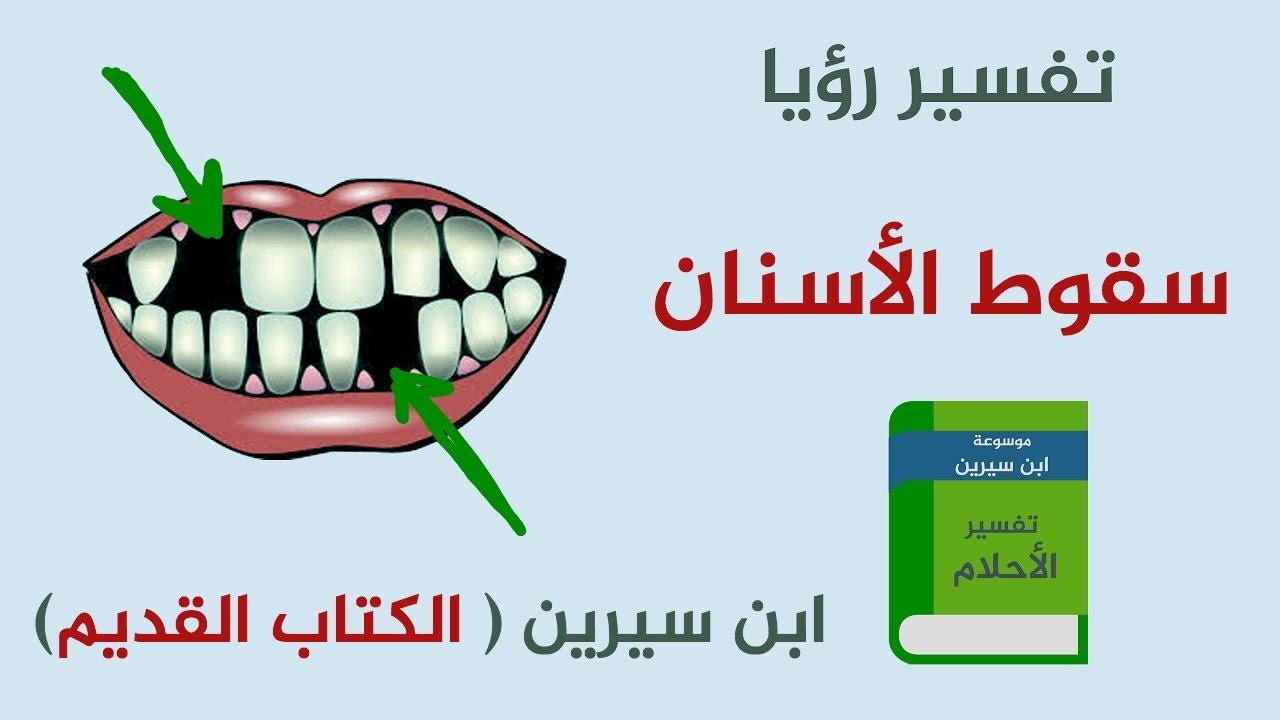 تفسير سقوط الأسنان لابن سيرين