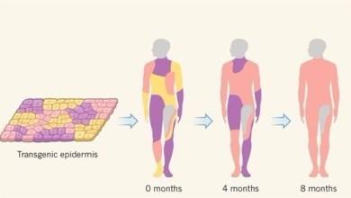 Photo of باستخدام الهندسة الوراثية.. أطباء يزرعون جلداً جديداً لإنقاذ حياة طفل