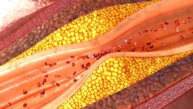 Photo of نصائح صحية: ما هي أنواع الكولسترول، ومتى يُنصح بإجراء اختبار الكولسترول؟