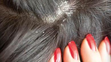 Photo of ما هي أنواع قشرة الشعر وكيف التخلص منها