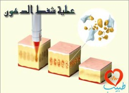 Photo of عملية شفط الدهون Liposuction
