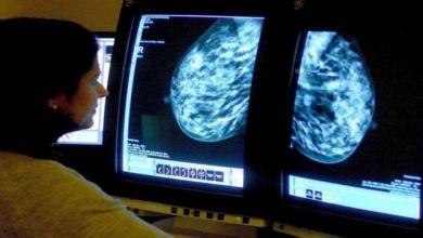 Photo of دواء سيغير حياة مرضى سرطان الثدي