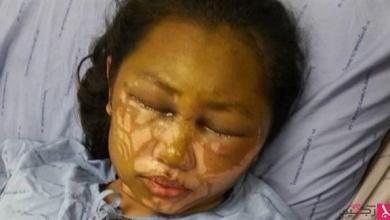 Photo of بالفيديو: تفقد بصرها بعد هجوم بالأسيد من حبيبها الغيور