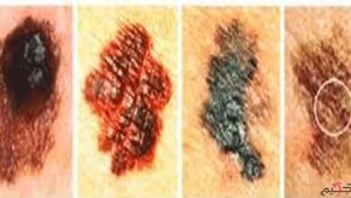 Photo of أنواع سرطان الجلد