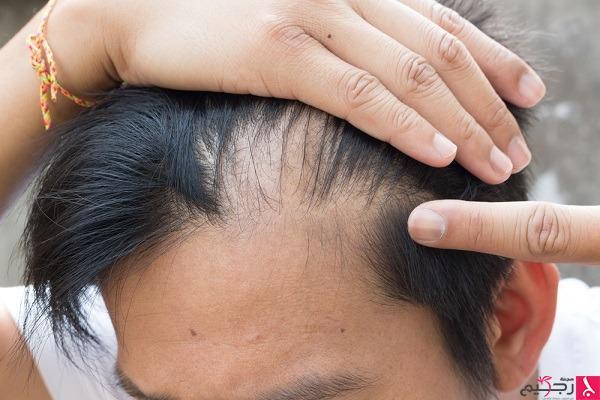 وسائل علاج انسداد مسام فروة الرأس مجلة رجيم