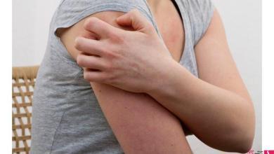 Photo of علاج التهاب البشرة