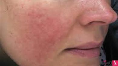 Photo of التهاب البشرة