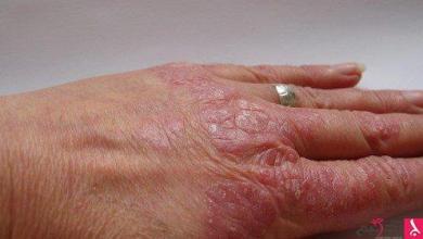 Photo of مضاعفات مرض الصدفية