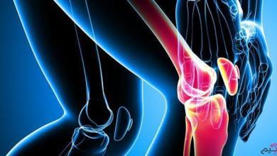 Photo of أعراض الروماتيزم في العظام
