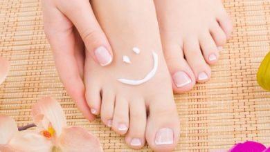 Photo of كيف تحمين قدميك من التشققات المزعجة؟