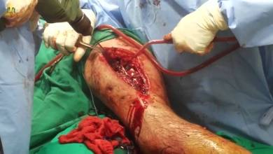 Photo of نجاح أول جراحة لتثبيت كسر الفخذ في مستشفى الخفجي العام