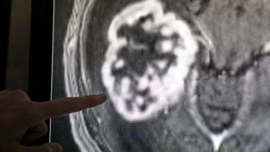 Photo of فريق علمي مصري يخترع طريقة جديدة لعلاج سرطان الدماغ