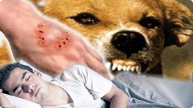 تفسير عضة الكلب في الحلم