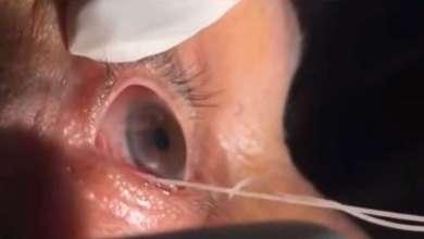 Photo of بطول 15 سنتيمترا.. دودة تسكن عين مسن! (فيديو)