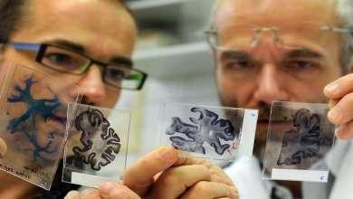 Photo of اكتشاف دواء يمكنه التغلب على ألزهايمر