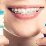 التنظيف المثالي للاسنان