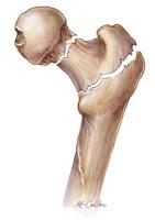 Photo of قلة الحركة تسبب هشاشة العظام