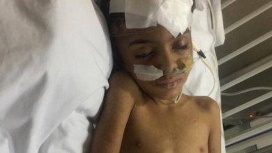 Photo of تفاصيل قصة طفل خميس مشيط المعنف