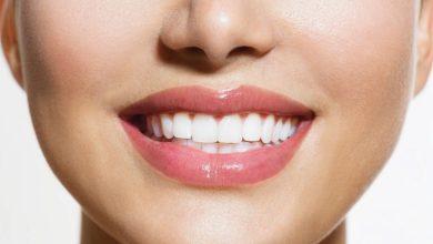 Photo of كيف احصل على أسنان بيضاء في اسبوع