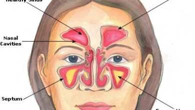 Photo of حساسية الانف , أسباب حساسية الانف , أعراض حساسية الانف , علاج