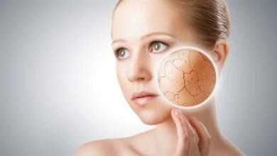 Photo of علاج جفاف البشرة , اسباب البشرة الجافة , علاج خشونة الوجه
