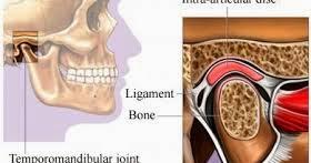 Photo of متلازمة المفصل الفكي الصدغي Temporomandibular joint syndrome, علاج و أعراض