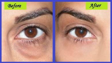 Photo of علاج الهالات السوداء في الوجه