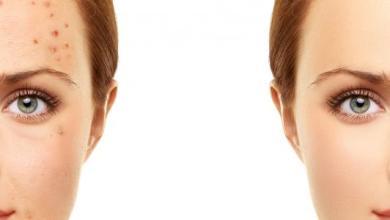 Photo of طريقة ازالة الحبوب من الوجه