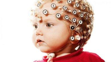 Photo of أعراض زيادة كهرباء المخ عند الأطفال