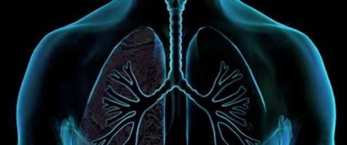 الوقاية من الماء على الرئة
