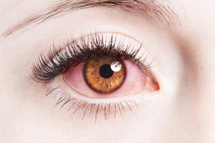 قطرات ضغط العين