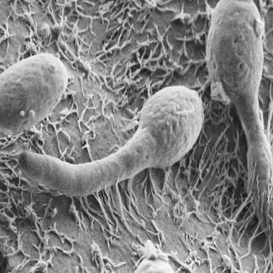 الفطريات في الأمعاء