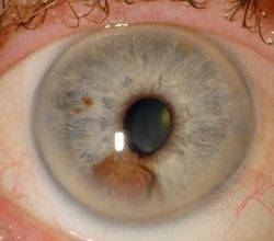 Photo of أعراض وعلاج سرطان العين