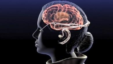 Photo of تاثير القولون العصبي على الاعصاب
