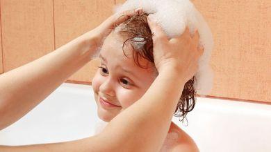 Photo of علاج القشرة عند الاطفال بالاعشاب