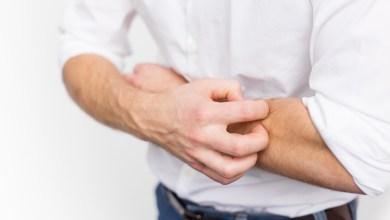 Photo of 10 وصفات لعلاج الحكة في الجسم